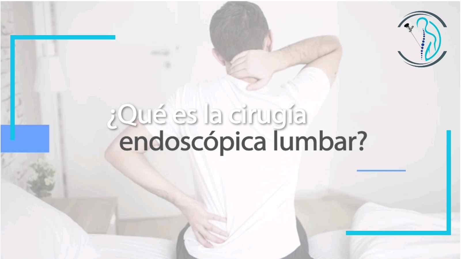 La Cirugía Endoscópica para tratar una hernia discal lumbar