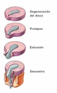 gestacion de una hernia discal
